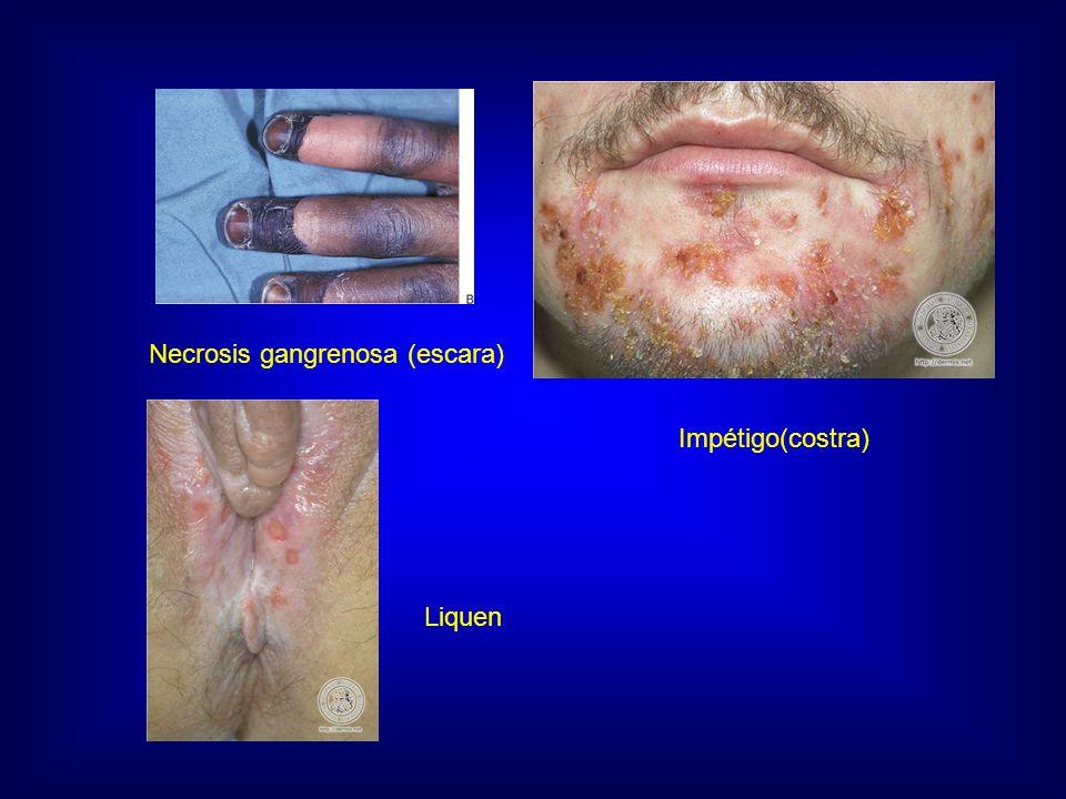 Necrosis gangrenosa (escara) Impétigo(costra) Liquen