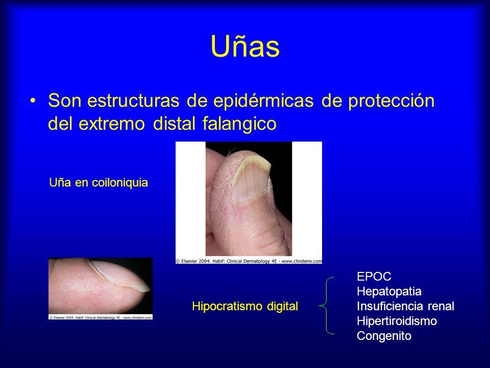 Uñas Son estructuras de epidérmicas de protección del extremo distal falangico Uña en coiloniquia Hipocratismo digital EPOC Hepatopatia Insuficiencia