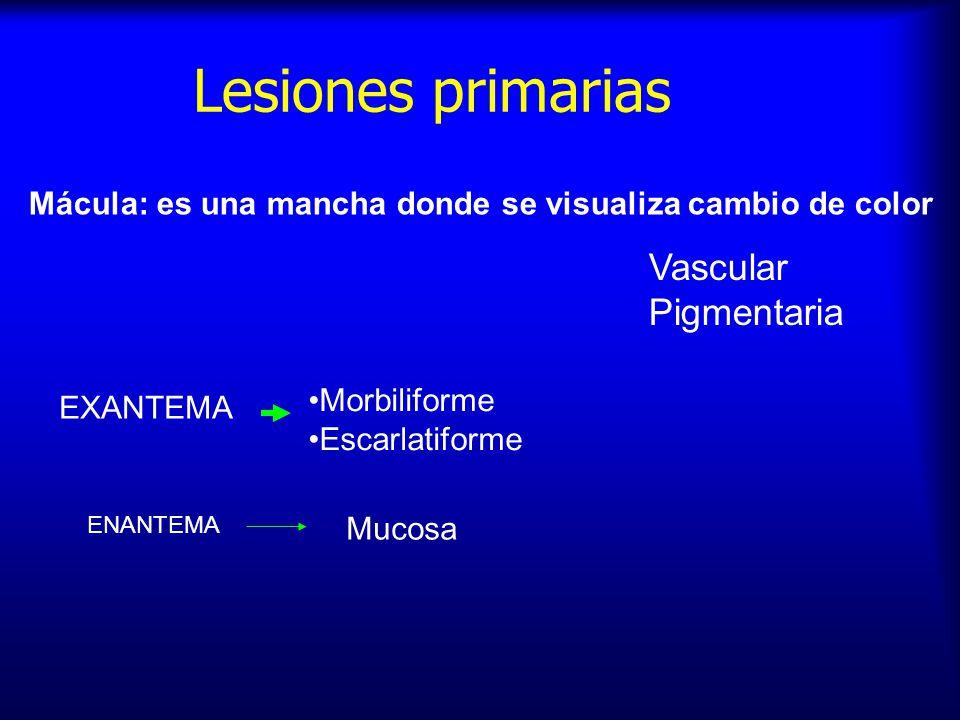 Lesiones primarias Mácula: es una mancha donde se visualiza cambio de color Vascular Pigmentaria Morbiliforme Escarlatiforme EXANTEMA ENANTEMA Mucosa