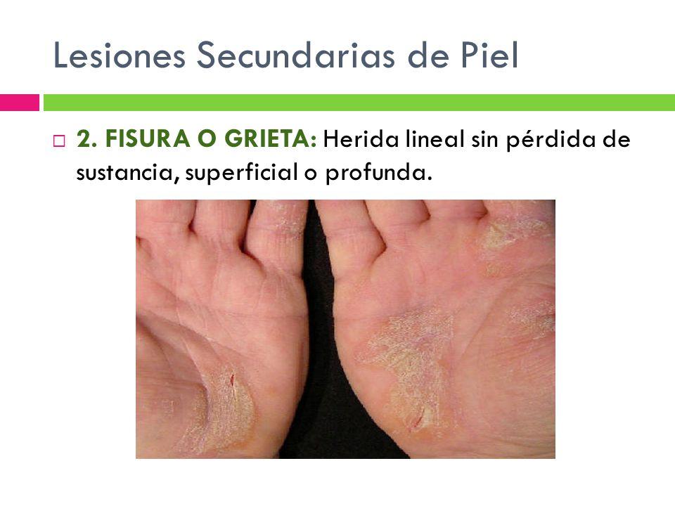 Lesiones Secundarias de Piel  2. FISURA O GRIETA: Herida lineal sin pérdida de sustancia, superficial o profunda.