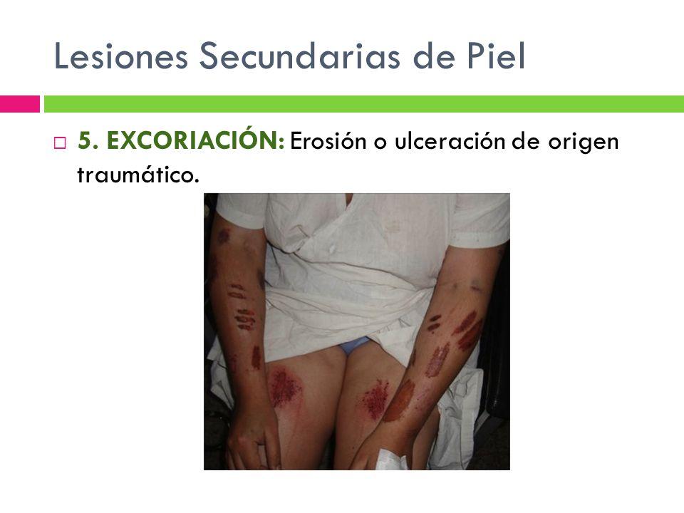 Lesiones Secundarias de Piel  5. EXCORIACIÓN: Erosión o ulceración de origen traumático.