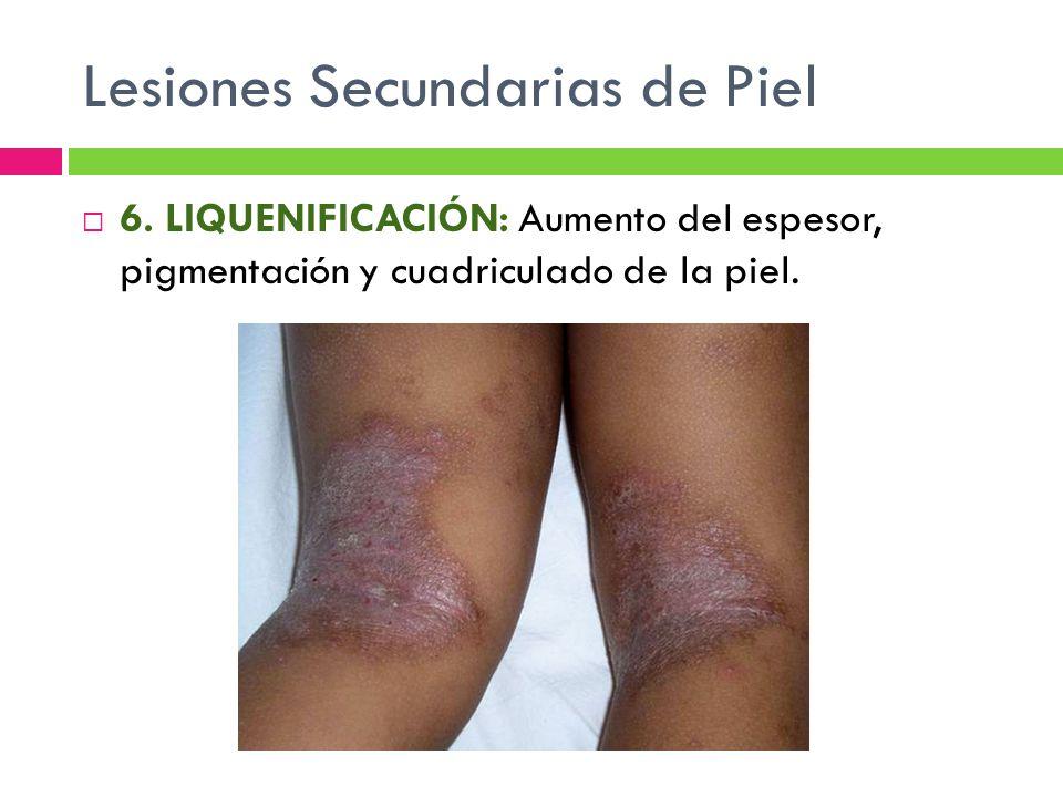 Lesiones Secundarias de Piel  6. LIQUENIFICACIÓN: Aumento del espesor, pigmentación y cuadriculado de la piel.