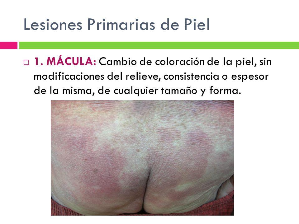 Lesiones Primarias de Piel  2.