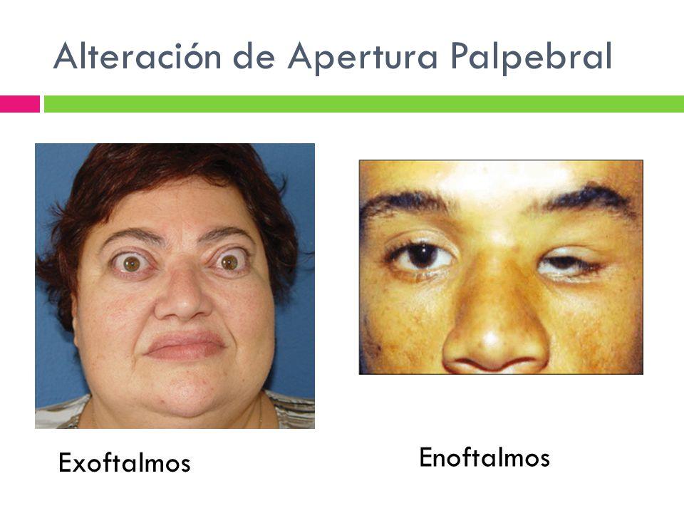 Alteración de Apertura Palpebral Exoftalmos Enoftalmos