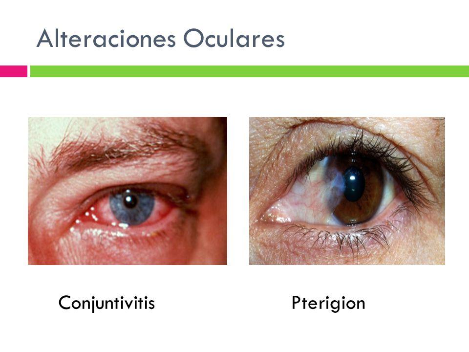 Alteraciones Oculares PterigionConjuntivitis