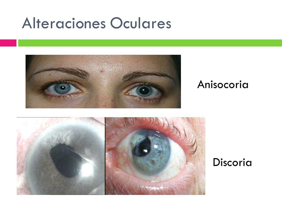 Alteraciones Oculares Anisocoria Discoria