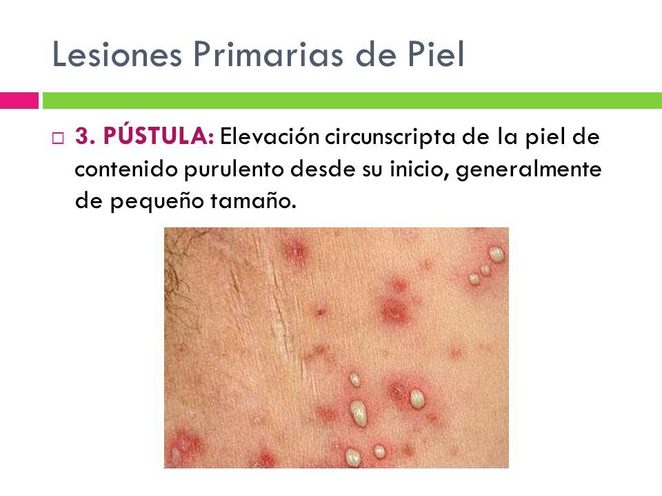 Lesiones Primarias de Piel  3. PÚSTULA: Elevación circunscripta de la piel de contenido purulento desde su inicio, generalmente de pequeño tamaño.