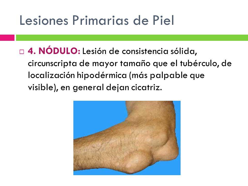 Lesiones Primarias de Piel  4. NÓDULO: Lesión de consistencia sólida, circunscripta de mayor tamaño que el tubérculo, de localización hipodérmica (má