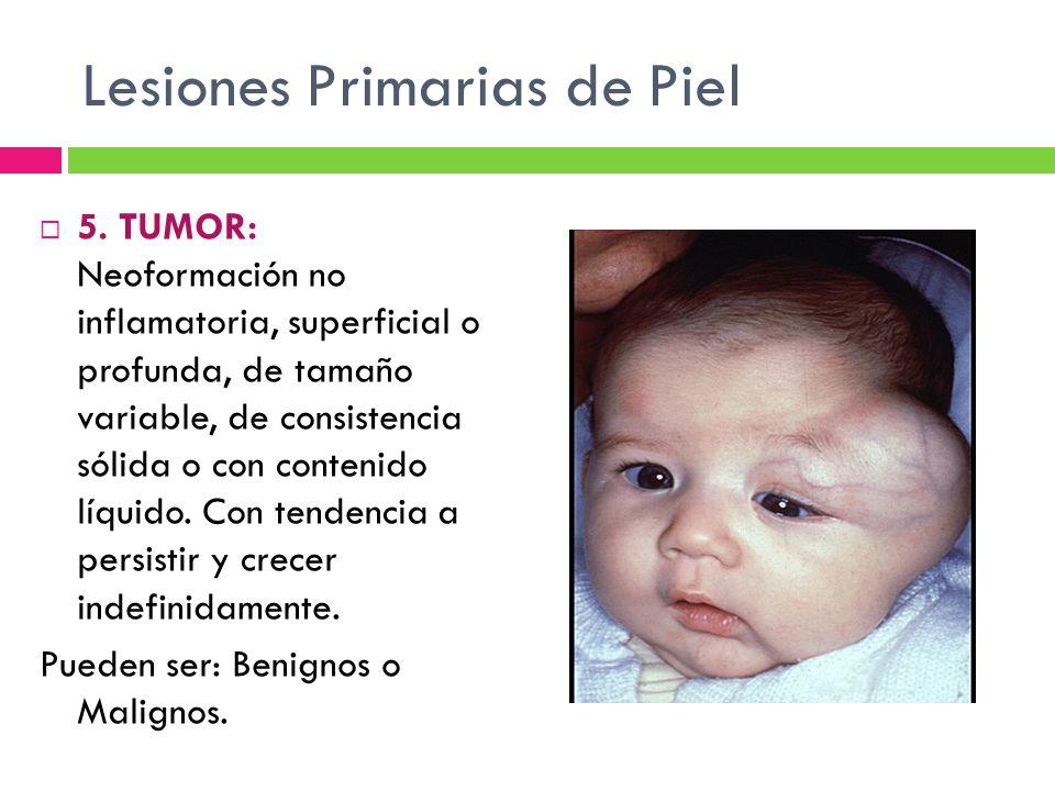 Lesiones Primarias de Piel  5. TUMOR: Neoformación no inflamatoria, superficial o profunda, de tamaño variable, de consistencia sólida o con contenid