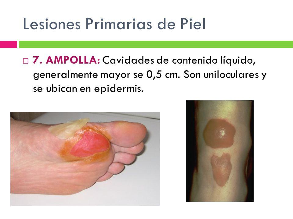 Lesiones Primarias de Piel  7. AMPOLLA: Cavidades de contenido líquido, generalmente mayor se 0,5 cm. Son uniloculares y se ubican en epidermis.