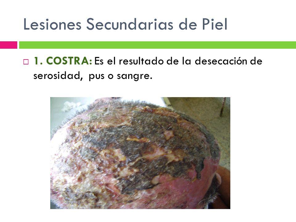 Lesiones Secundarias de Piel  1. COSTRA: Es el resultado de la desecación de serosidad, pus o sangre.