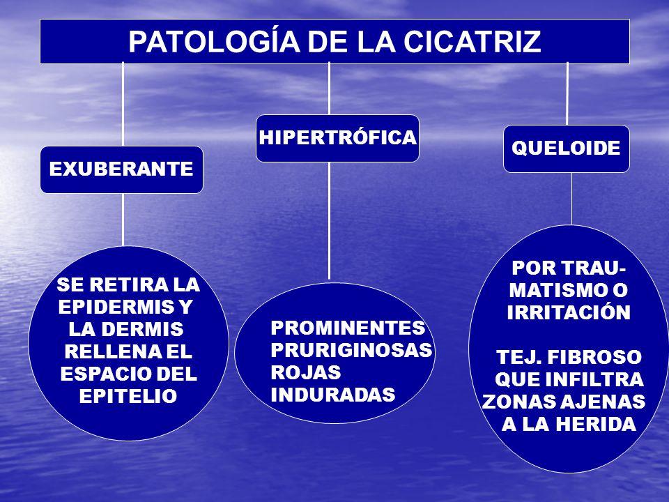 PATOLOGÍA DE LA CICATRIZ SE RETIRA LA EPIDERMIS Y LA DERMIS RELLENA EL ESPACIO DEL EPITELIO PROMINENTES PRURIGINOSAS ROJAS INDURADAS POR TRAU- MATISMO O IRRITACIÓN TEJ.