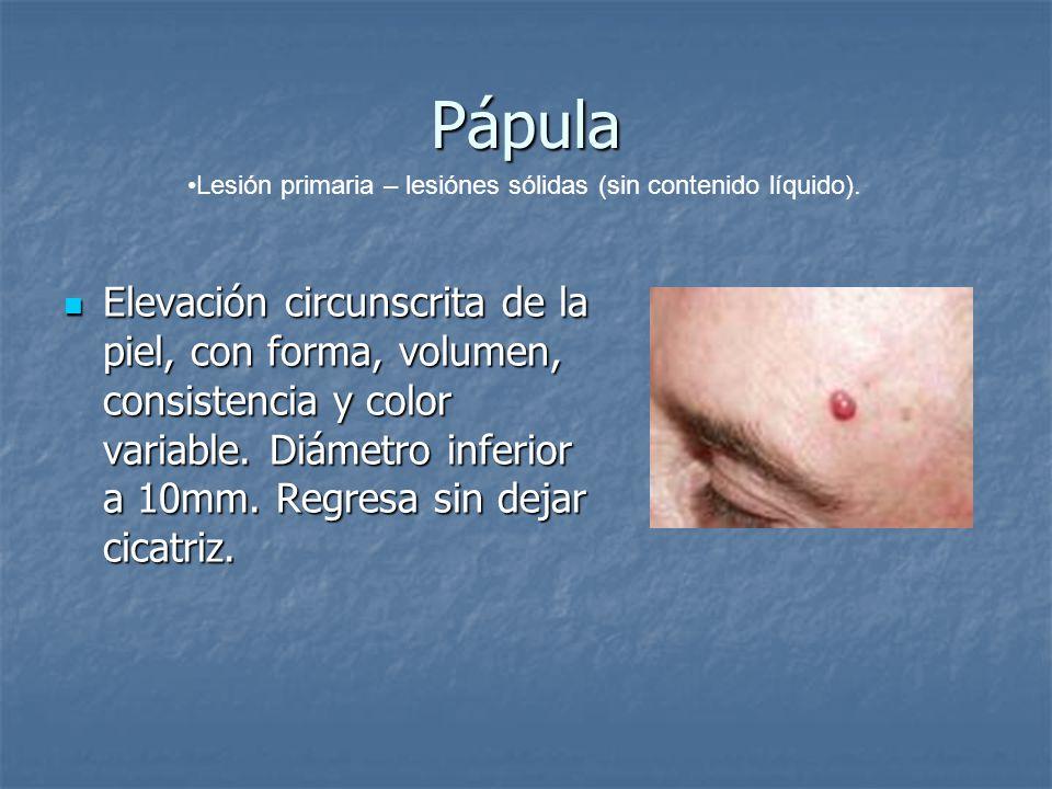Pápula Elevación circunscrita de la piel, con forma, volumen, consistencia y color variable. Diámetro inferior a 10mm. Regresa sin dejar cicatriz. Ele