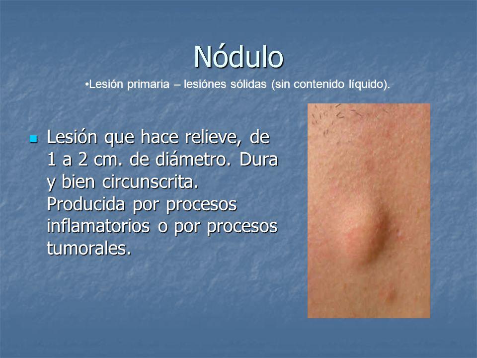 Nódulo Lesión que hace relieve, de 1 a 2 cm. de diámetro. Dura y bien circunscrita. Producida por procesos inflamatorios o por procesos tumorales. Les