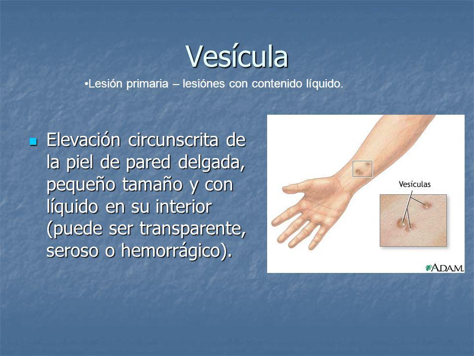 Vesícula Elevación circunscrita de la piel de pared delgada, pequeño tamaño y con líquido en su interior (puede ser transparente, seroso o hemorrágico