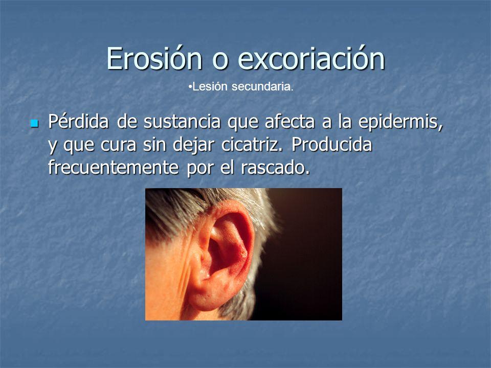 Erosión o excoriación Pérdida de sustancia que afecta a la epidermis, y que cura sin dejar cicatriz. Producida frecuentemente por el rascado. Pérdida