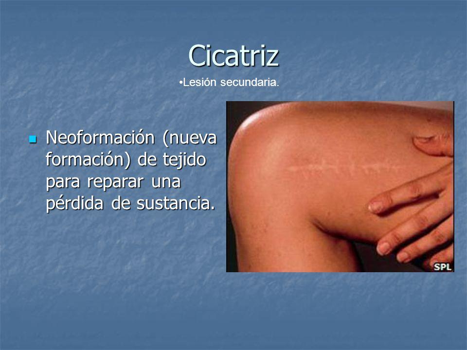 Cicatriz Neoformación (nueva formación) de tejido para reparar una pérdida de sustancia. Neoformación (nueva formación) de tejido para reparar una pér