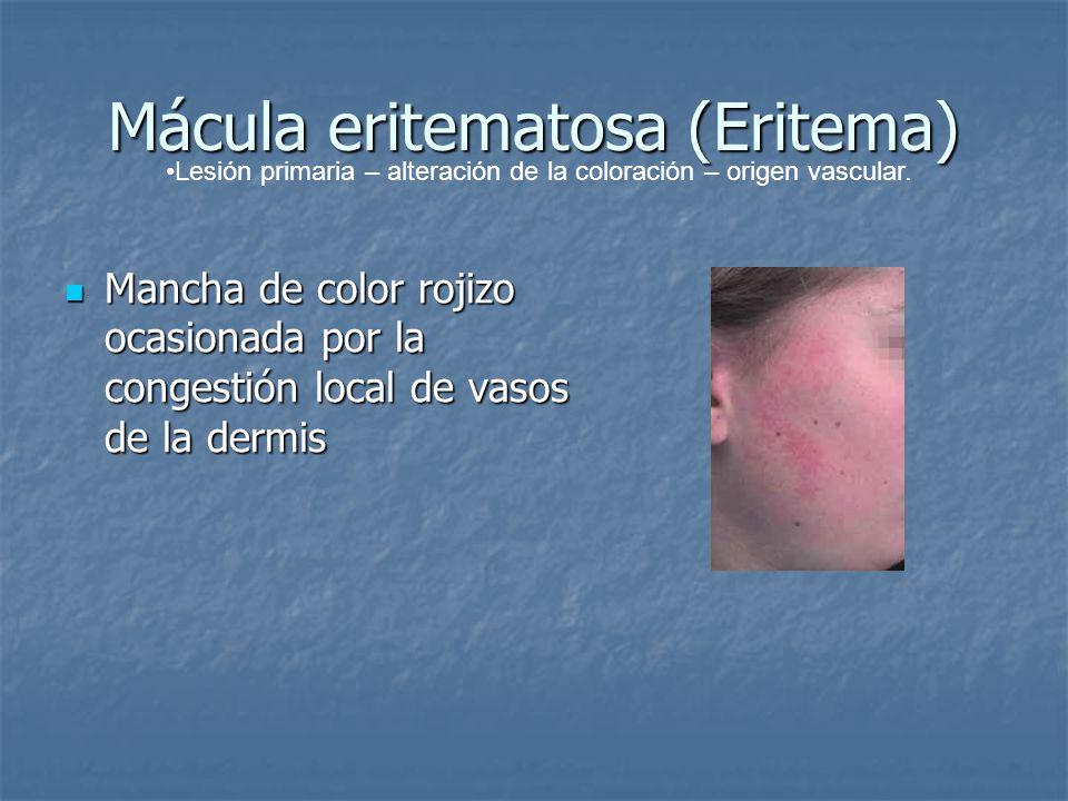 Mácula eritematosa (Eritema) Mancha de color rojizo ocasionada por la congestión local de vasos de la dermis Mancha de color rojizo ocasionada por la