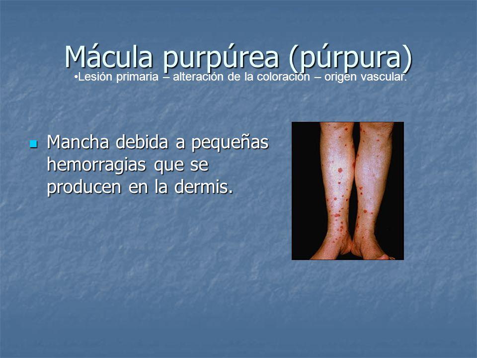 Mácula purpúrea (púrpura) Mancha debida a pequeñas hemorragias que se producen en la dermis. Mancha debida a pequeñas hemorragias que se producen en l