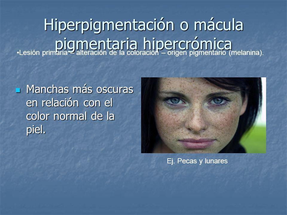 Hiperpigmentación o mácula pigmentaria hipercrómica Manchas más oscuras en relación con el color normal de la piel. Manchas más oscuras en relación co