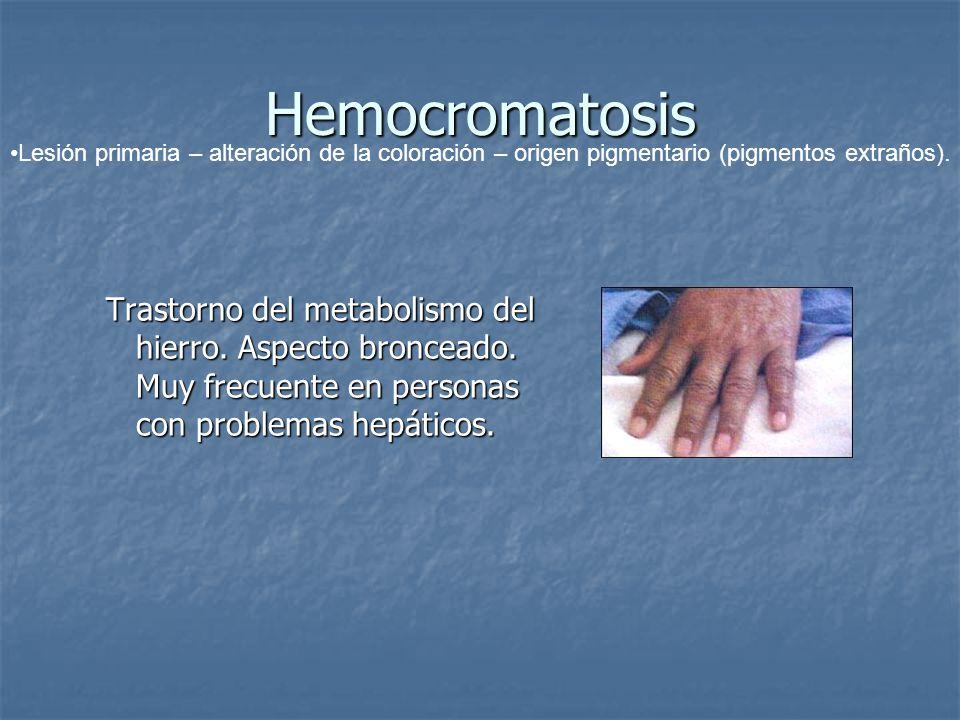 Hemocromatosis Trastorno del metabolismo del hierro. Aspecto bronceado. Muy frecuente en personas con problemas hepáticos. Lesión primaria – alteració