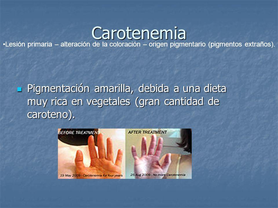 Carotenemia Pigmentación amarilla, debida a una dieta muy rica en vegetales (gran cantidad de caroteno). Pigmentación amarilla, debida a una dieta muy