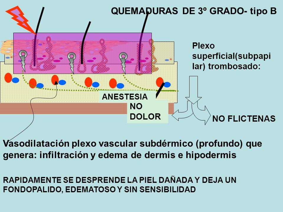 Plexo superficial(subpapi lar) trombosado: NO FLICTENAS ANESTESIA Vasodilatación plexo vascular subdérmico (profundo) que genera: infiltración y edema de dermis e hipodermis RAPIDAMENTE SE DESPRENDE LA PIEL DAÑADA Y DEJA UN FONDOPALIDO, EDEMATOSO Y SIN SENSIBILIDAD QUEMADURAS DE 3º GRADO- tipo B