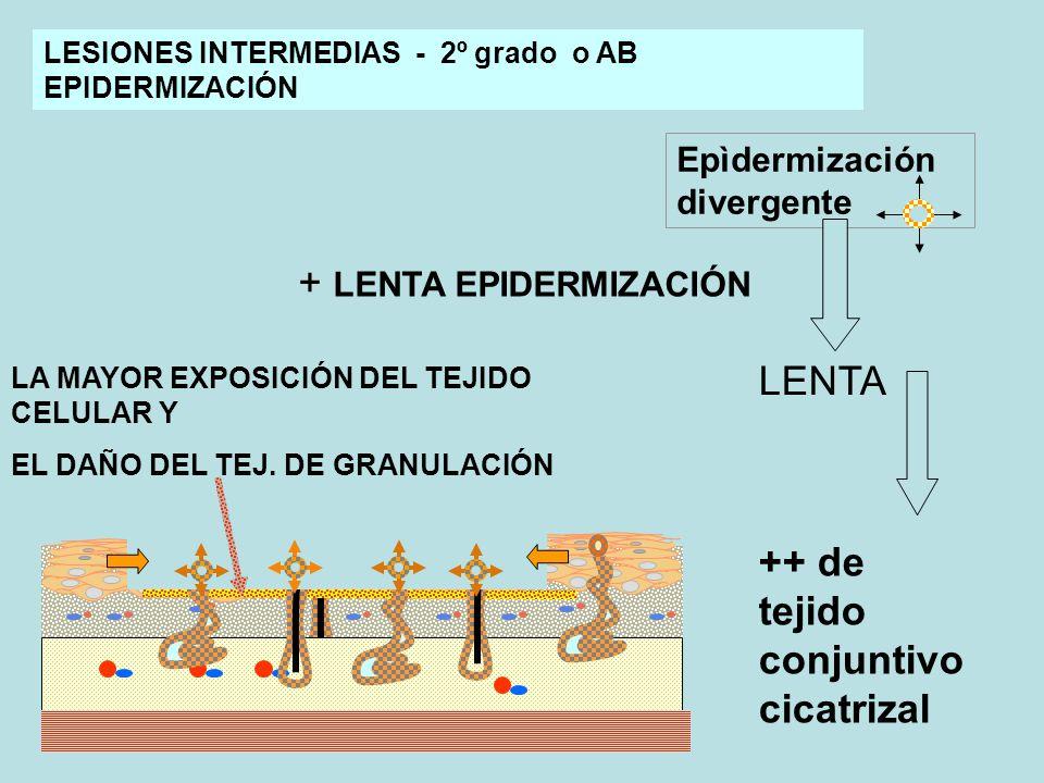 Epìdermización divergente ++ de tejido conjuntivo cicatrizal LESIONES INTERMEDIAS - 2º grado o AB EPIDERMIZACIÓN LENTA LA MAYOR EXPOSICIÓN DEL TEJIDO CELULAR Y EL DAÑO DEL TEJ.