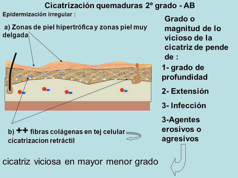 Cicatrización quemaduras 2º grado - AB Epidermización irregular : a) Zonas de piel hipertrófica y zonas piel muy delgada b) ++ fibras colágenas en tej celular cicatrizacion retráctil Grado o magnitud de lo vicioso de la cicatriz de pende de : 1- grado de profundidad 2- Extensión 3- lnfección 3-Agentes erosivos o agresivos cicatriz viciosa en mayor menor grado