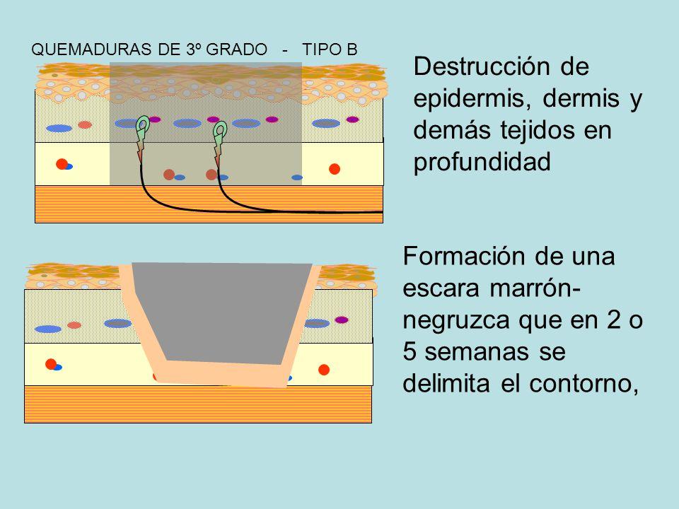 QUEMADURAS DE 3º GRADO - TIPO B Destrucción de epidermis, dermis y demás tejidos en profundidad Formación de una escara marrón- negruzca que en 2 o 5 semanas se delimita el contorno,