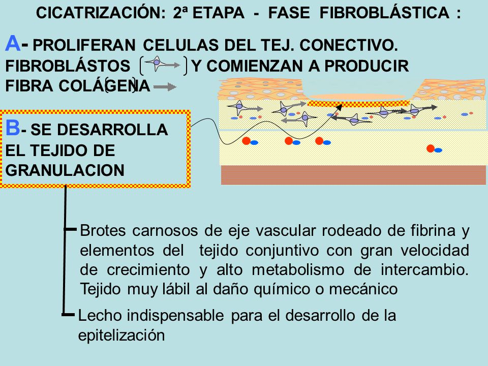 3ª ETAPA - FASE DE EPITELIZACIÓN el epitelio crece desde los bordes en forma concéntrica necesariamente apoyado sobre el tejido de granulación El daño del tejido de …granulación impide la …epitelización -Erosión mecánica o química (antisépticos, HOH).