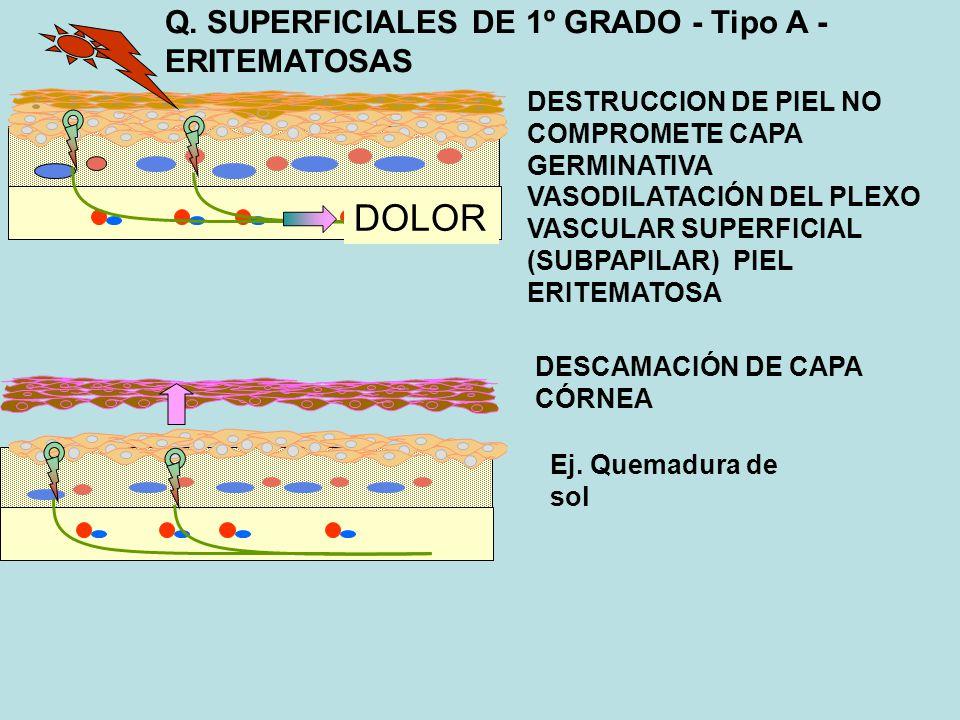 Q. SUPERFICIALES DE 1º GRADO - Tipo A - ERITEMATOSAS DESTRUCCION DE PIEL NO COMPROMETE CAPA GERMINATIVA VASODILATACIÓN DEL PLEXO VASCULAR SUPERFICIAL