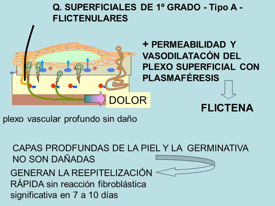Q. SUPERFICIALES DE 1º GRADO - Tipo A - FLICTENULARES + PERMEABILIDAD Y VASODILATACÓN DEL PLEXO SUPERFICIAL CON PLASMAFÉRESIS FLICTENA CAPAS PRODFUNDA