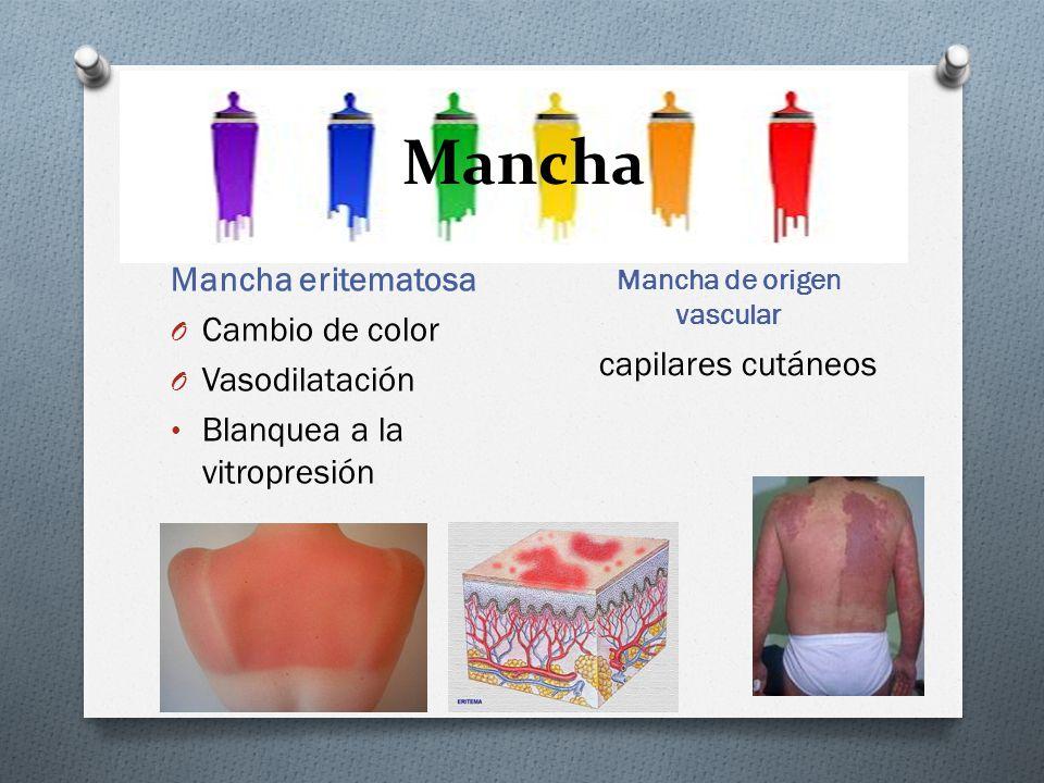 Mancha Mancha de origen vascular Mancha eritematosa O Cambio de color O Vasodilatación Blanquea a la vitropresión capilares cutáneos