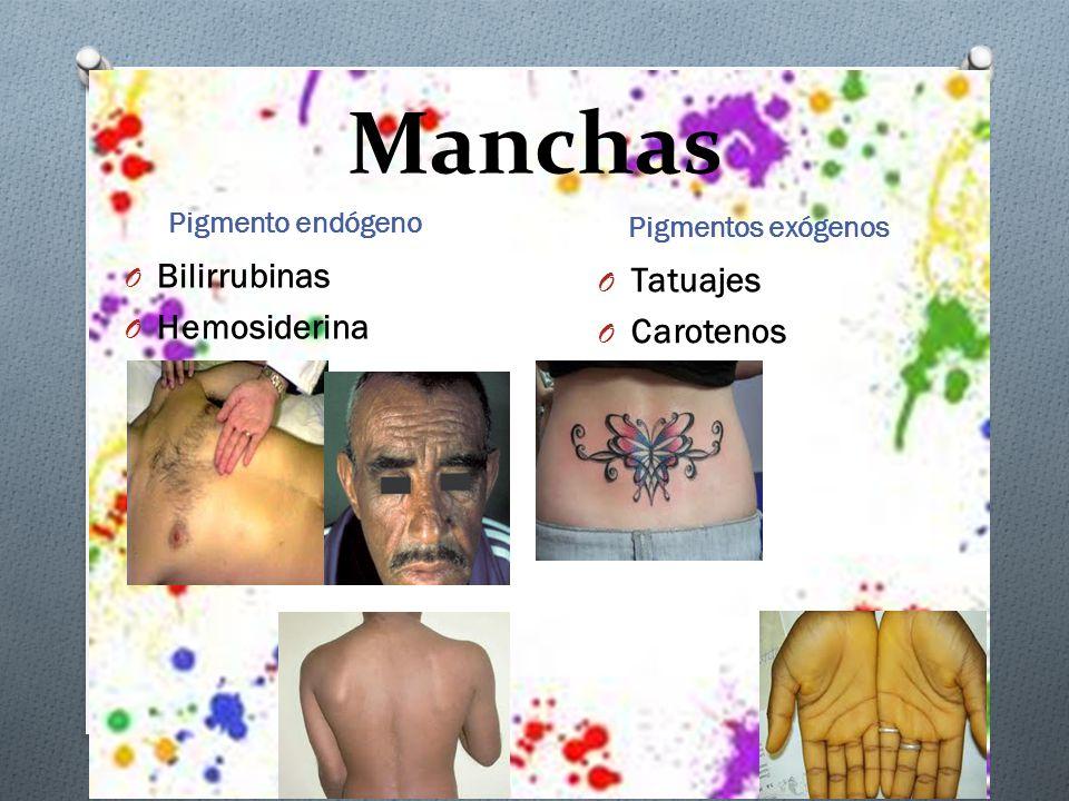 Manchas Pigmento endógeno Pigmentos exógenos O Bilirrubinas O Hemosiderina O Tatuajes O Carotenos