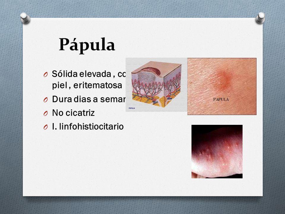 Pápula O Sólida elevada, color piel, eritematosa O Dura dias a semanas O No cicatriz O I. linfohistiocitario