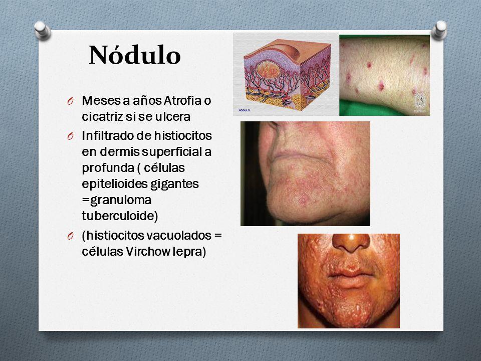Nódulo O Meses a años Atrofia o cicatriz si se ulcera O Infiltrado de histiocitos en dermis superficial a profunda ( células epitelioides gigantes =gr