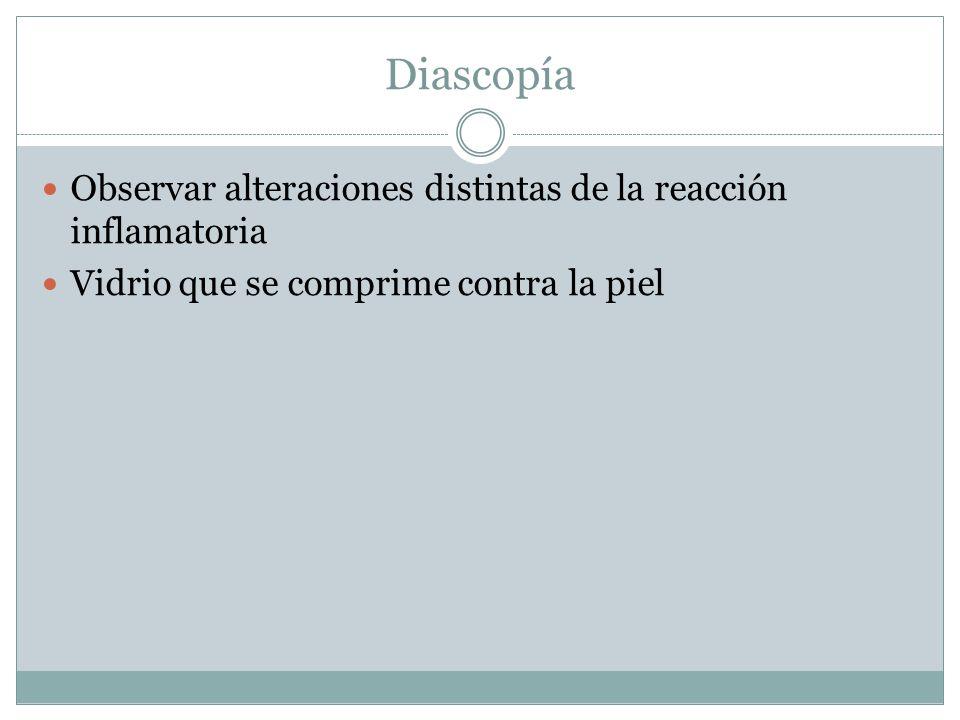 Diascopía Observar alteraciones distintas de la reacción inflamatoria Vidrio que se comprime contra la piel