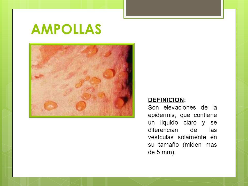 AMPOLLAS DEFINICION: Son elevaciones de la epidermis, que contiene un liquido claro y se diferencian de las vesículas solamente en su tamaño (miden mas de 5 mm).