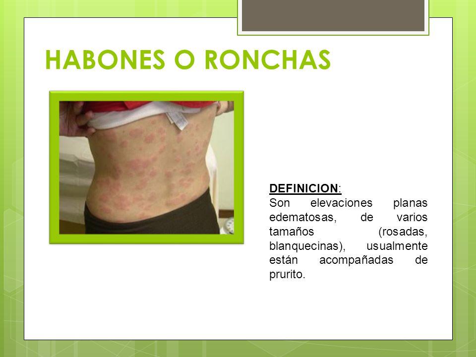 HABONES O RONCHAS DEFINICION: Son elevaciones planas edematosas, de varios tamaños (rosadas, blanquecinas), usualmente están acompañadas de prurito.