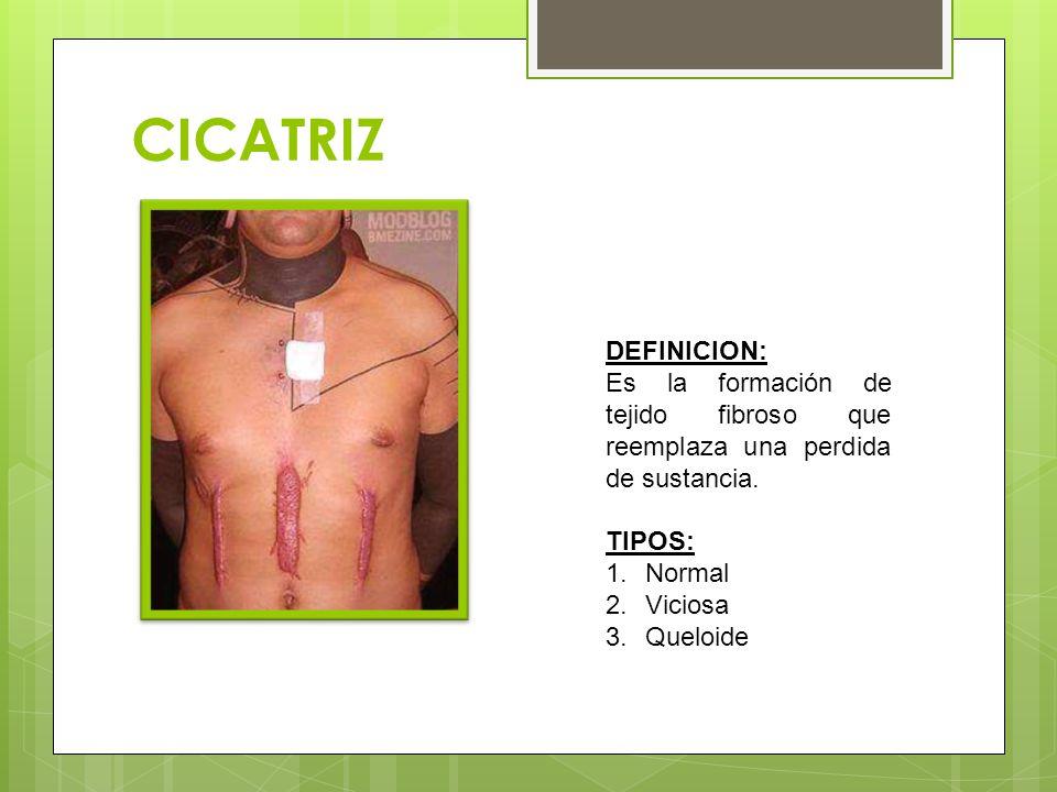 CICATRIZ DEFINICION: Es la formación de tejido fibroso que reemplaza una perdida de sustancia.