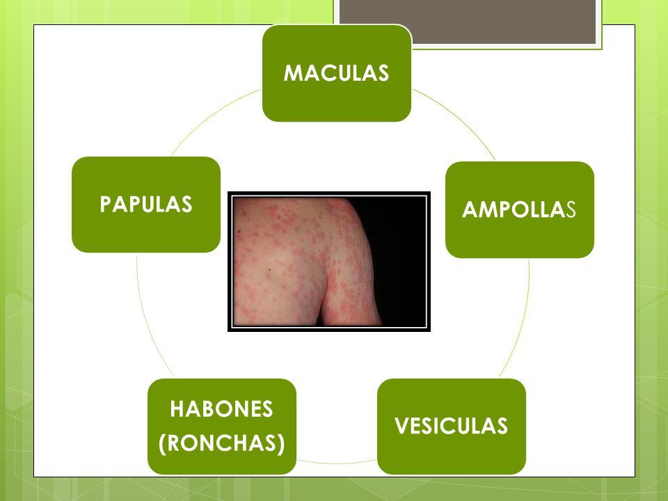 COSTRAS DEFINICION: Es un exudado desecado que se adhiere a la piel, pueden ser hemáticas, meliséricas o purulentas.
