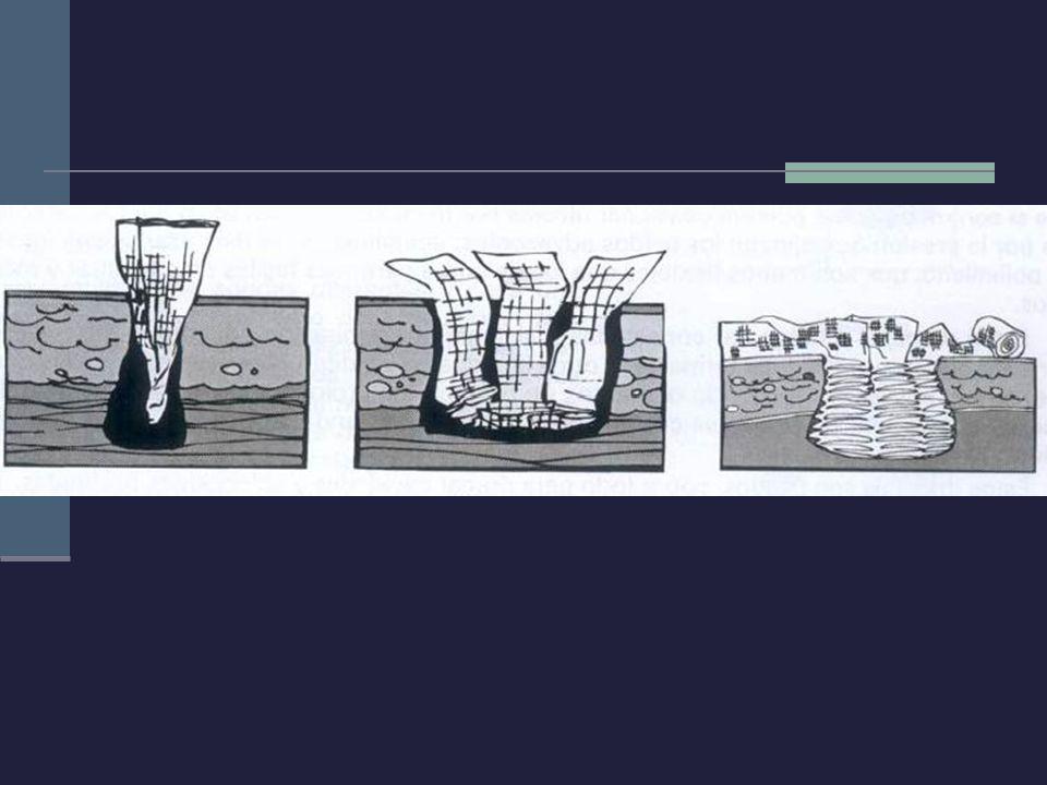 Penrose: Consiste en la exteriorización, a través de la herida quirúrgica, de un tubo de pared muy fina colapsable Fluidos salen al exterior por capilaridad Se puede conectar o no a un sistema colector Se emplea sobre todo en el drenaje de abscesos de partes blandas Su principal complicación es la infección