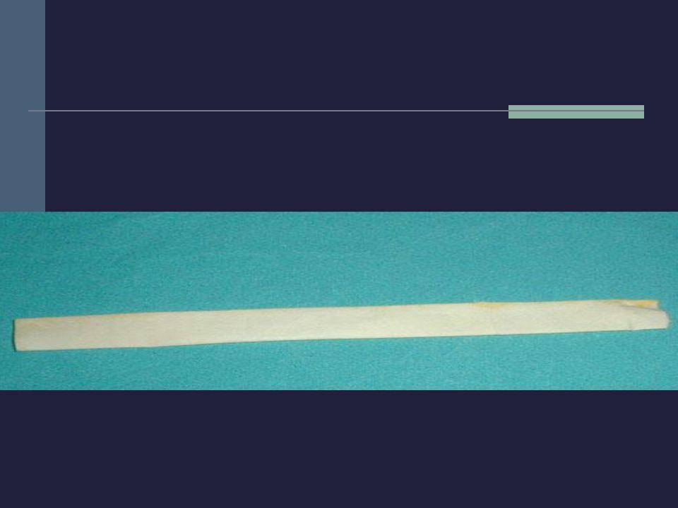 PASIVOS POR GRAVEDAD Kehr o tubo en T: catéter formado por un tubo y un travesaño perforado.