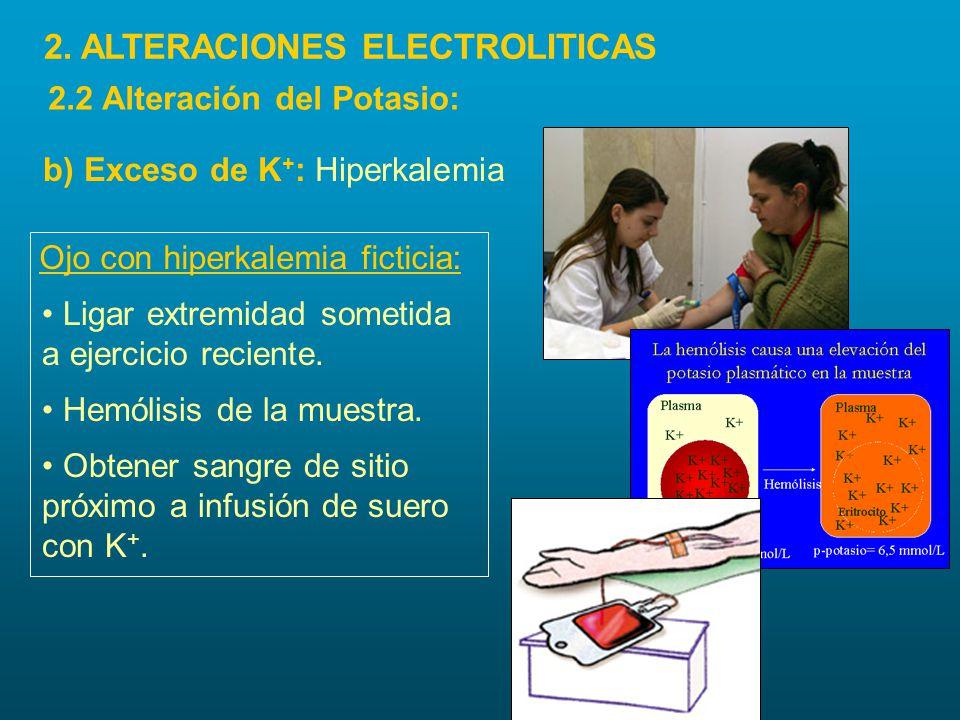 Ojo con hiperkalemia ficticia: Obtener sangre de sitio próximo a infusión de suero con K +. Ligar extremidad sometida a ejercicio reciente. Hemólisis
