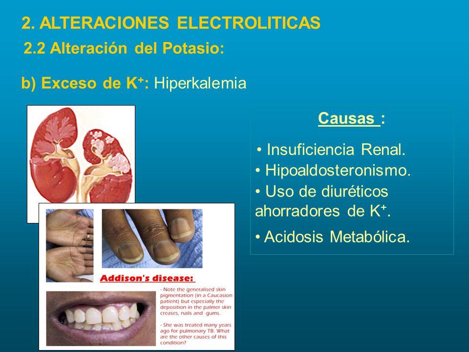 Uso de diuréticos ahorradores de K +. Acidosis Metabólica. Causas : Insuficiencia Renal. Hipoaldosteronismo. b) Exceso de K + : Hiperkalemia 2. ALTERA