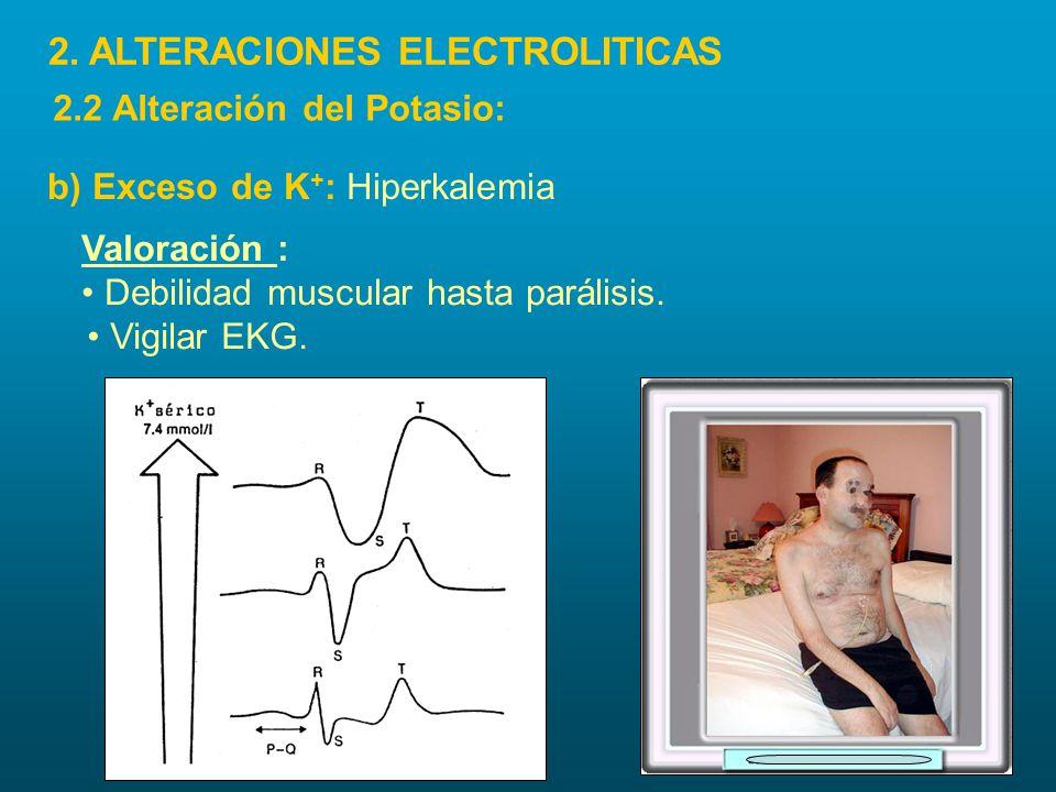 Valoración : Debilidad muscular hasta parálisis. Vigilar EKG. b) Exceso de K + : Hiperkalemia 2. ALTERACIONES ELECTROLITICAS 2.2 Alteración del Potasi