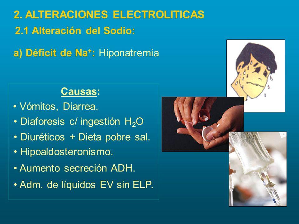 a) Déficit de Na + : Hiponatremia Causas: Hipoaldosteronismo. Aumento secreción ADH. Adm. de líquidos EV sin ELP. Vómitos, Diarrea. Diaforesis c/ inge