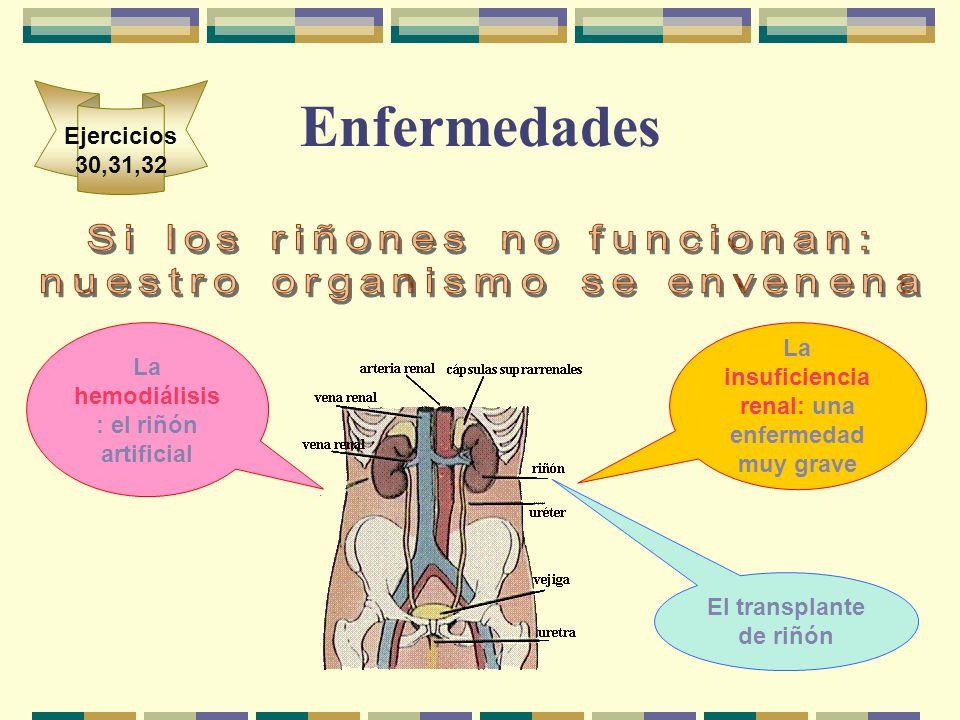 Enfermedades Ejercicios 30,31,32 La insuficiencia renal: una enfermedad muy grave La hemodiálisis : el riñón artificial El transplante de riñón