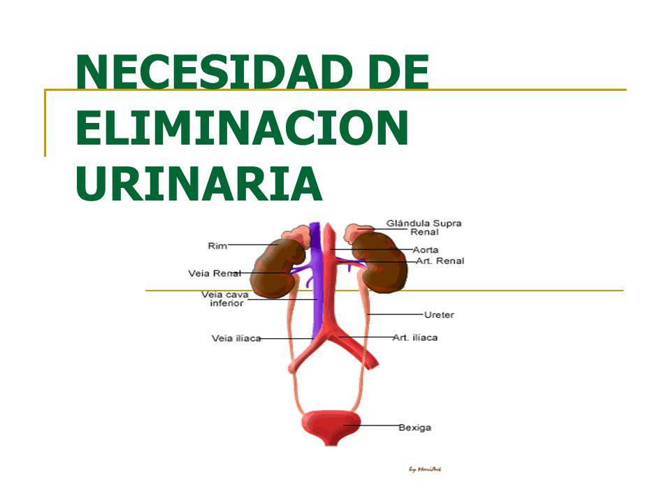 NECESIDAD DE ELIMINACION URINARIA